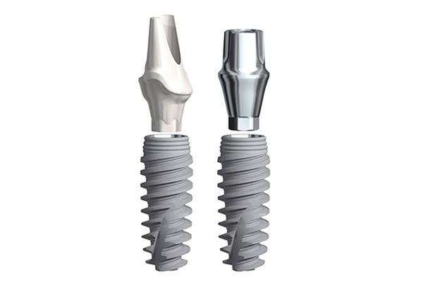 Implantes - Implante Dental Málaga - Prodentis