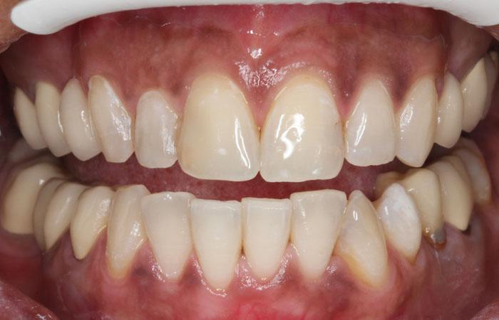 Tras la realizacion de un blanqueamiento dental